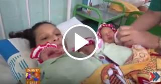 El increíble parto de trillizos en Granma